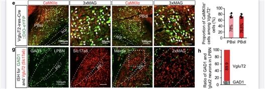 科学家揭示调控神经性疼痛的臂旁核微环_门控-兴奋性-神经元- ()
