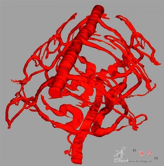 """同一个基因""""发明""""了血红蛋白_血红蛋白-蠕虫-物种-"""