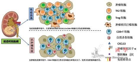 """肾透明细胞癌免疫逃逸""""元凶""""查明_预后-阳性-肿瘤-"""