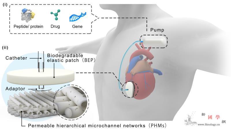 我国研发可灌注多功能心外膜装置_心肌梗死-灌注-植入- ()