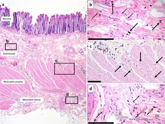 癌细胞可通过间质传播_结肠-样本-癌症-